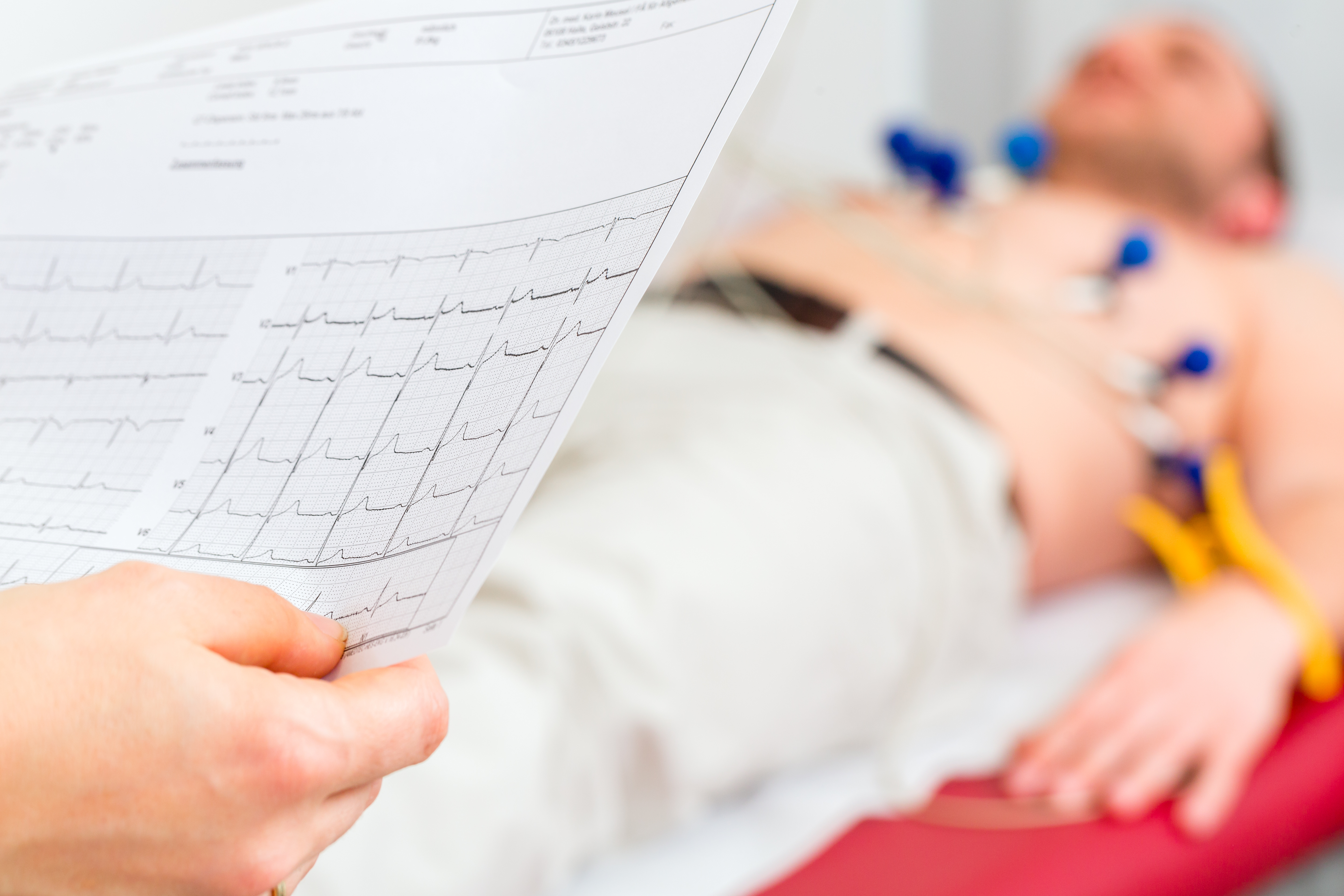 Female doctor analyzing ECG electrocardiogram patient hospital